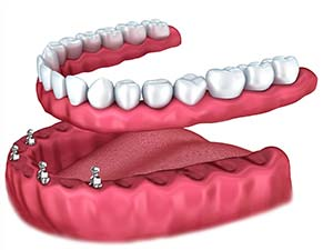 Implant Dentistry for Slipping Dentures